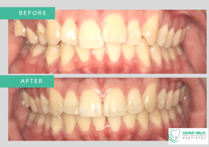 CWD Invisalign before and after